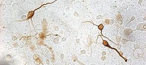 In situ hybridization and Immunochemistry